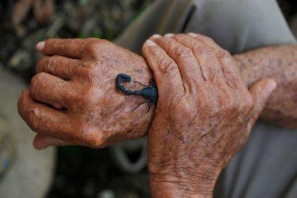في كوبا لدغة عقرب علاج للألم