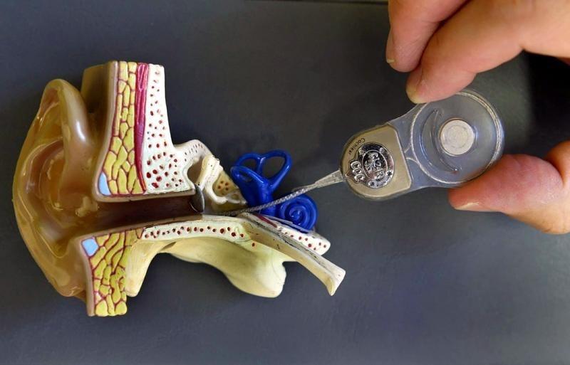 Asocian la osteoporosis con un aumento del riesgo de sordera súbita